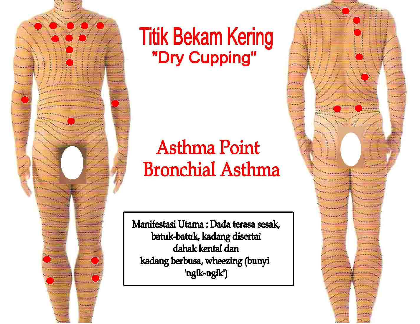 dry-cupping-asthma.jpg